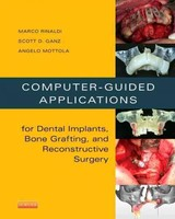 Computer-guided Applications For Dental Implants, Bone Grafting, And Reconstructive Surgery (adapted Translation) - Mottola, Angelo; Ganz, Scott D.; Rinaldi, Marco - ISBN: 9780323278034