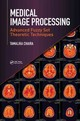 Medical Image Processing - Chaira, Tamalika (centre For Biomedical Engineering, Indian Institute Of Te... - ISBN: 9781498700450