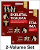 Skeletal Trauma: Basic Science, Management, and Reconstruction, 2-Volume Set - Anderson, Paul A; Krettek, Christian; Jupiter, Jesse B.; Browner, Bruce D. - ISBN: 9780323611145