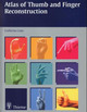 Thumb And Finger Reconstruction - Loda, Guillermo - ISBN: 9783131011916