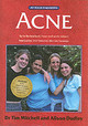 Acne - Mitchell, Tim; Dudley, Alison - ISBN: 9781859590737