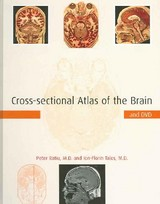 Cross-sectional Atlas Of The Brain And Dvd - Ratiu, Peter, M.d.; Talos, Ion-florin, M.d. - ISBN: 9780674019232